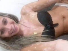 Contribuição Amadora Nacional – Driele Magrinha Gostosa Com Vitiligo Registra Fotos Nua, Trepando Com Namorado e Vaza na Net – RJ